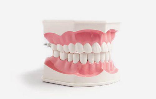 Dental Jaw Model
